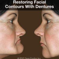 denture-faces-thumb